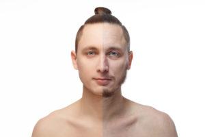 メンズ脱毛をする男性